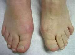 Holiday Season May Trigger Painful Toe Joints